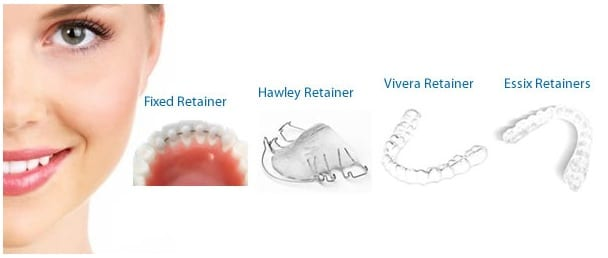 Retainers Available at Orthodontics Center of Orange County
